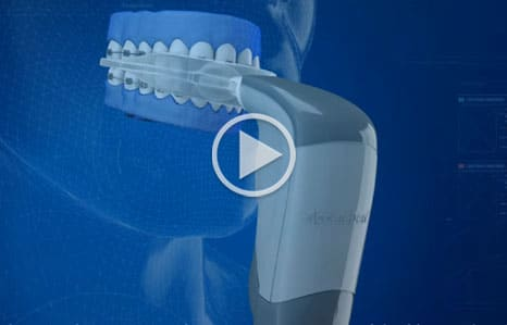 Acceledent Video Thumbnail at Franklin Square Orthodontics Syracuse NY