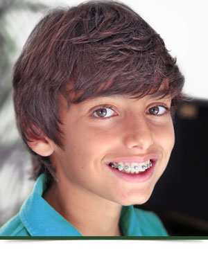 All About Braces at Franklin Square Orthodontics Syracuse NY